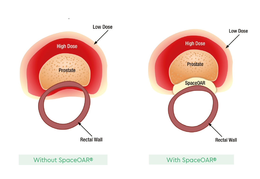 Treating Patients With Spaceoar 174 Hydrogel Genesiscare