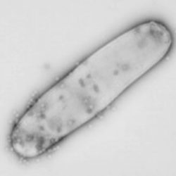 Buruli ulcer (Mycobacterium ulcerans infection)