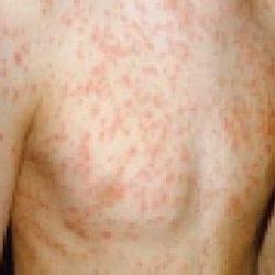 Measles Outbreaks 2019