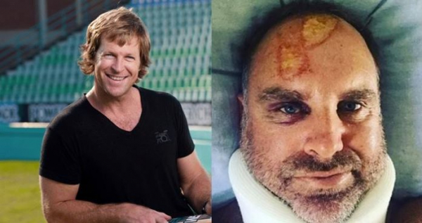 Former South African Legendary Player Makes Fun Of Mathew Hayden's Serious Injuries