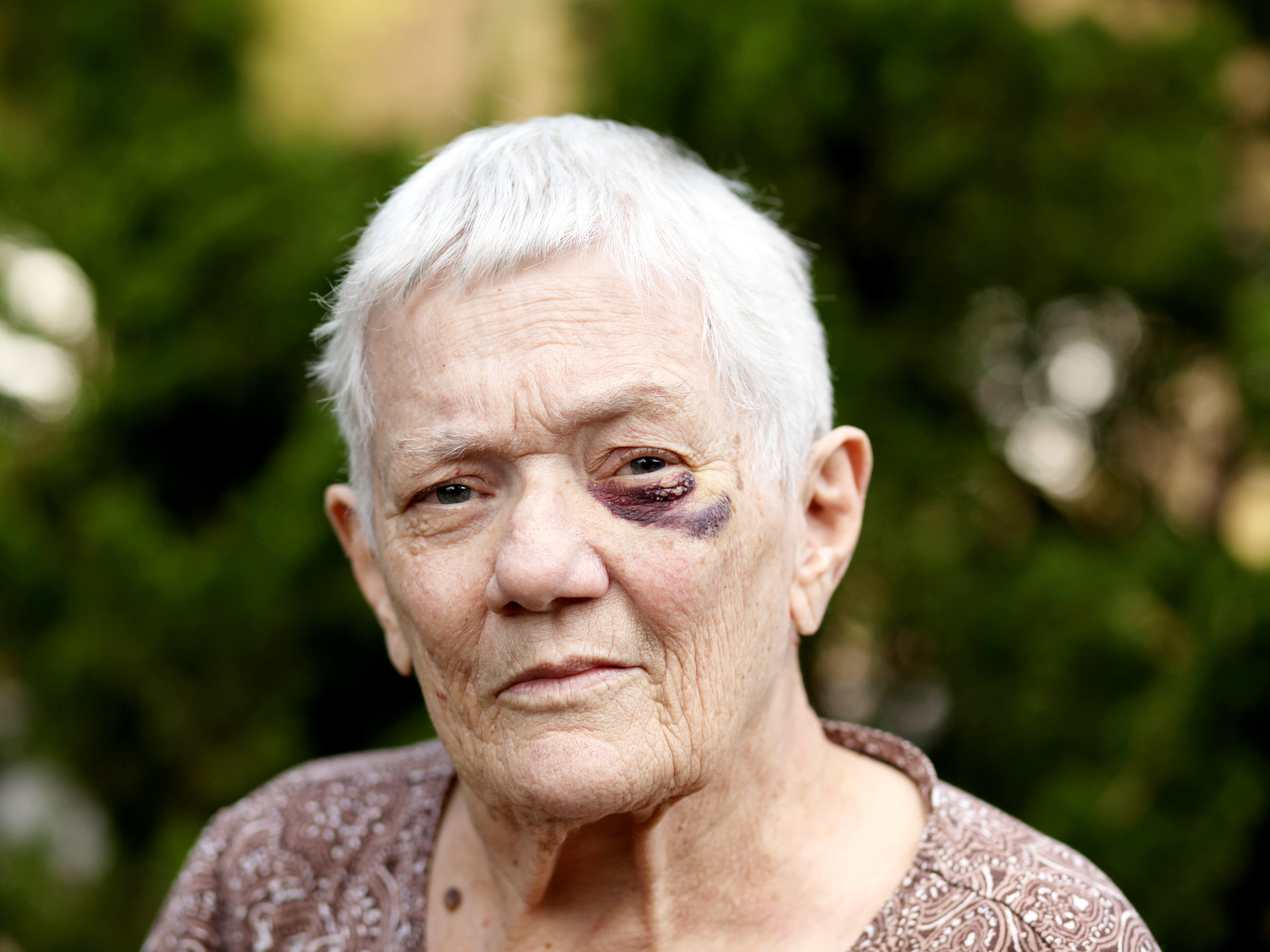 Older woman with a bruise on her face