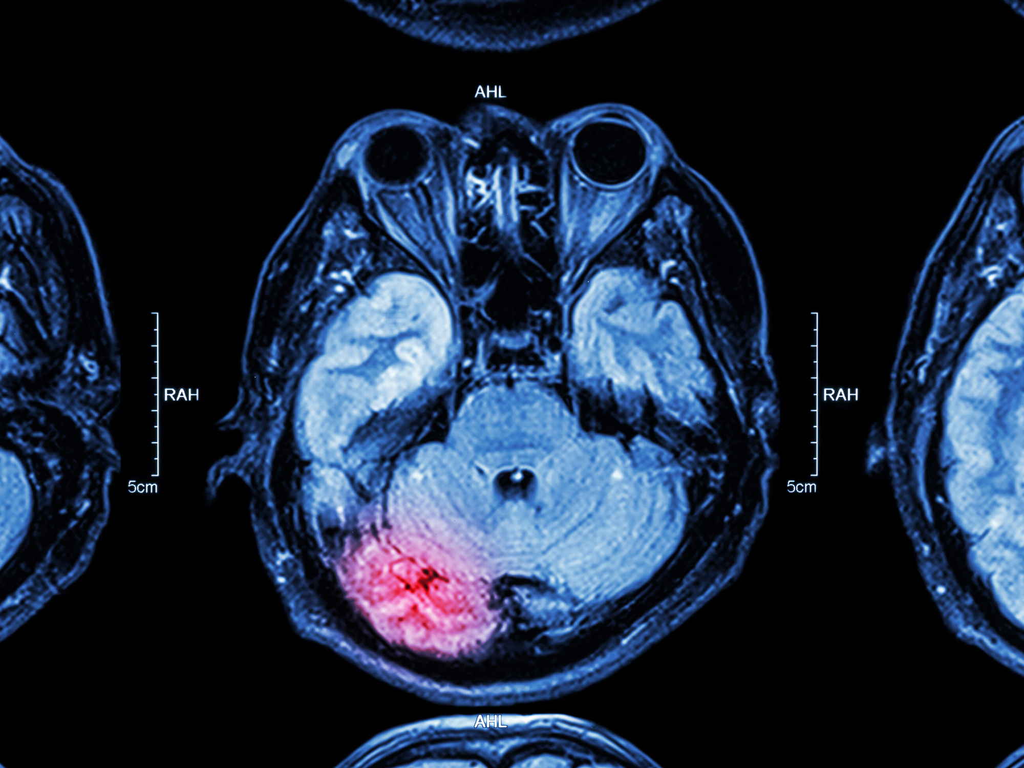 Acquired brain injury: What are the different types and how are they caused?