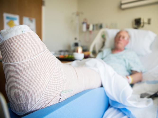 Older man in hospital with a broken leg after a fall.