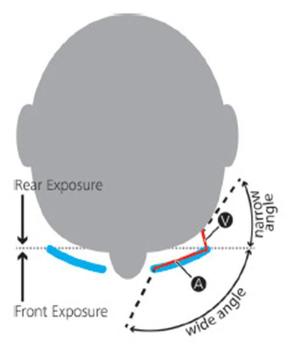Figure 5a.jpg
