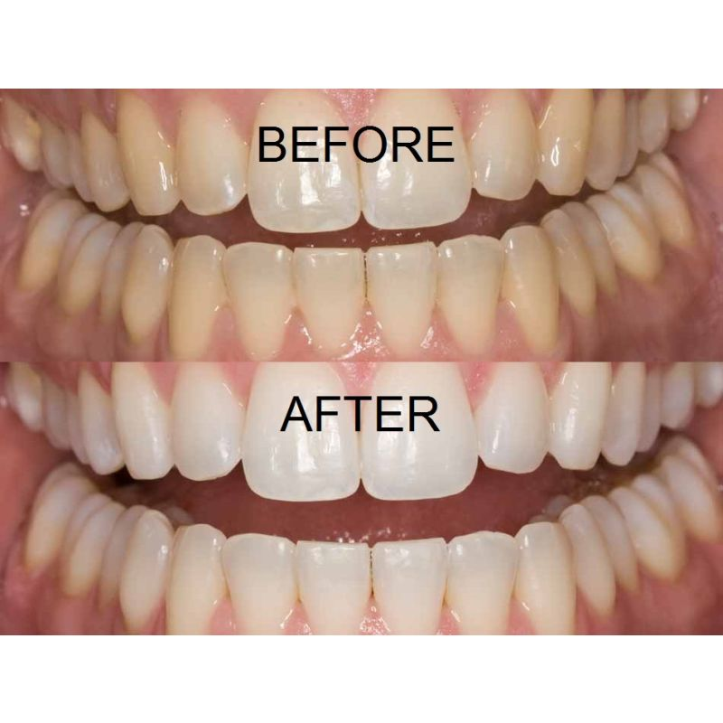 the bleaching of teeth a review Looking for an effective and quality teeth whitening pen this article list best teeth whitening pens based on their effectiveness, price, consumer feedback and etc.