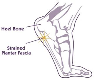 39694839af The plantar fascia is a thick fibrous band of tissue in the bottom of the  foot which runs from the heel to the base of the toes. When placed under  sudden or ...