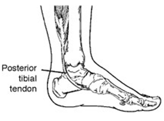 Posterior Tibialis Tendon Dysfunction (PTTD) – Acquired