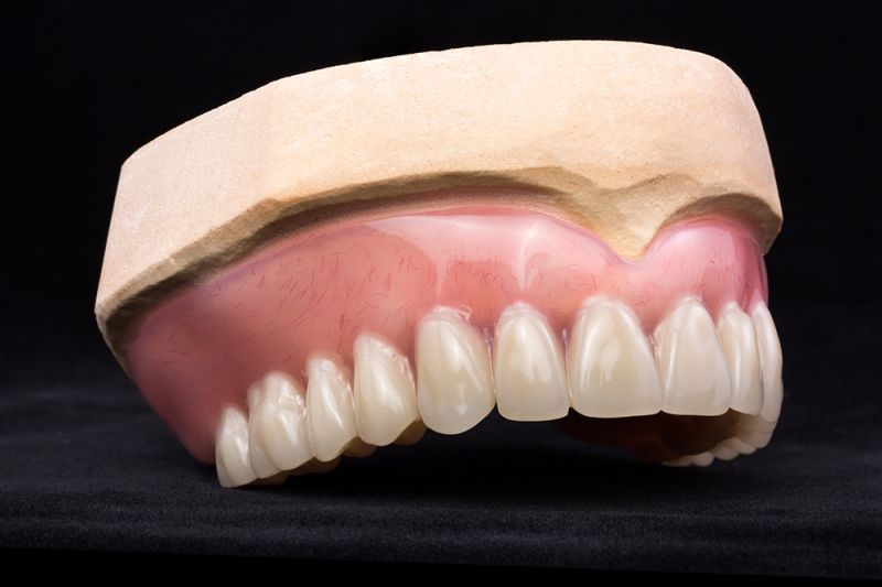 Townsville dentists absolutely dental why dentures are like shoes if dentures can be taken out then a key question is whats keeping them in solutioingenieria Image collections