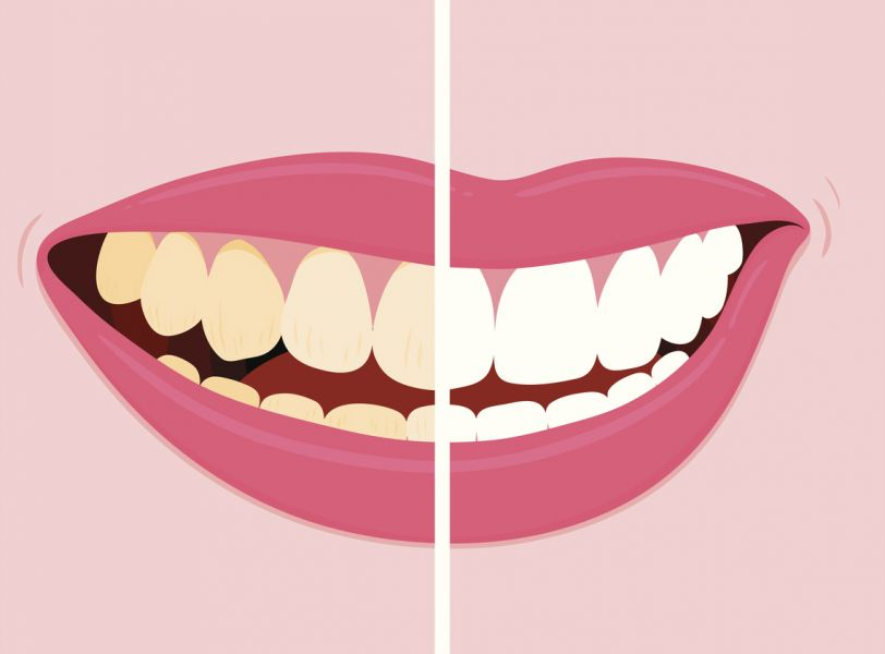 Understanding Tannins And Teeth Discolouration