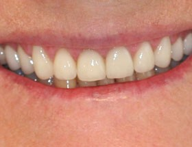 Cosmetic Dentistry Townsville