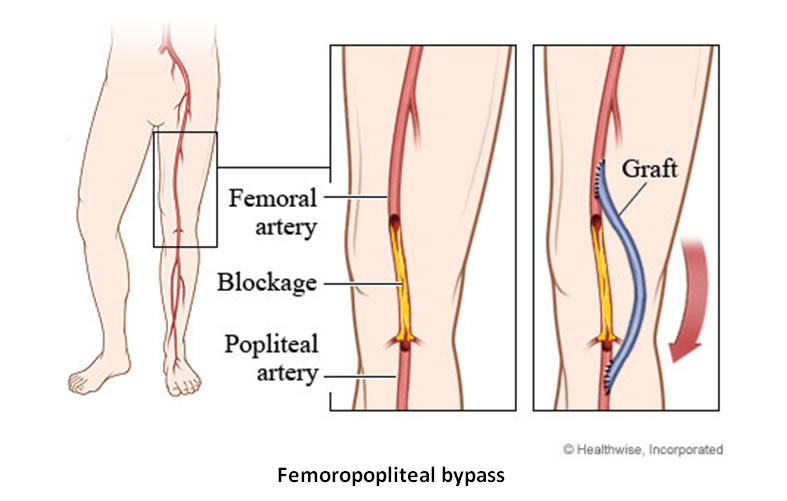 femoropoplitealer go around dissertation