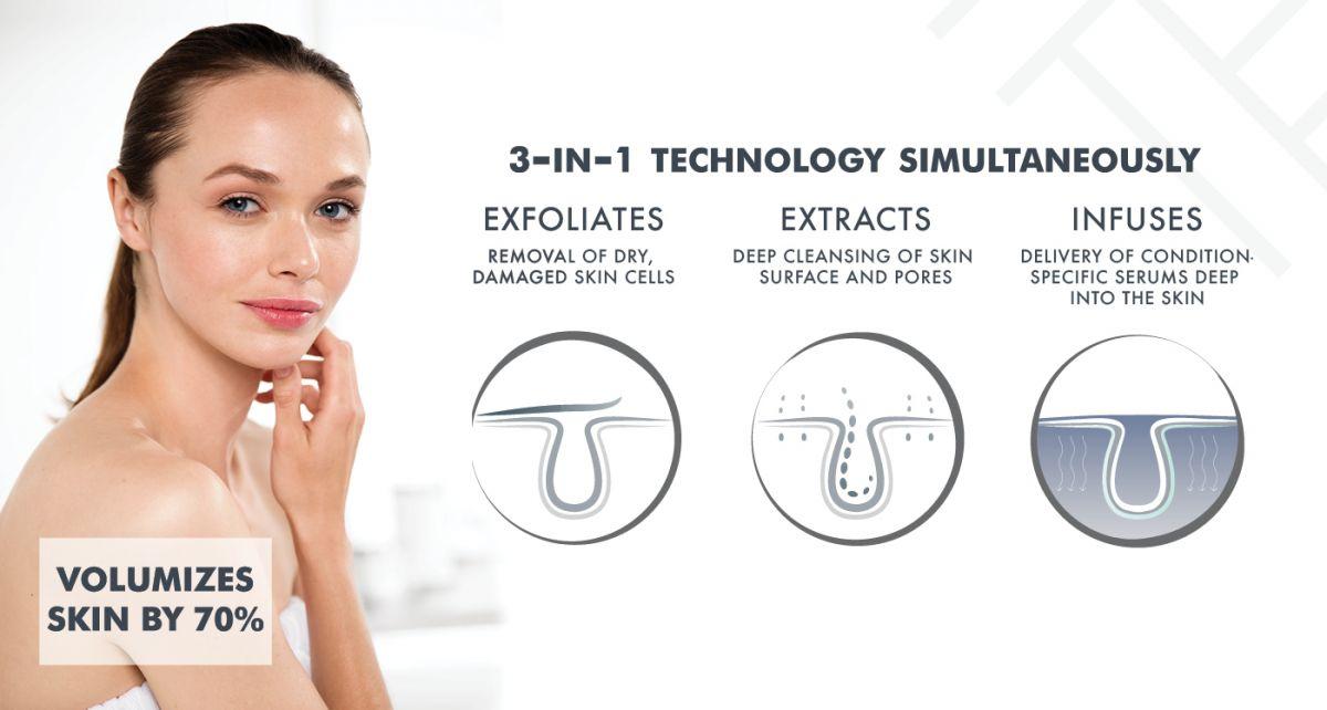 Silk Peel Dermal Infusion | Skinworx - Townsville Skin Clinic