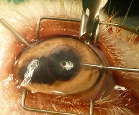 Cornea implanted film