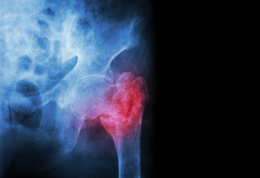 New national standard promotes better care for hip fracture patients