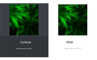 Rescan Confocal Microscope