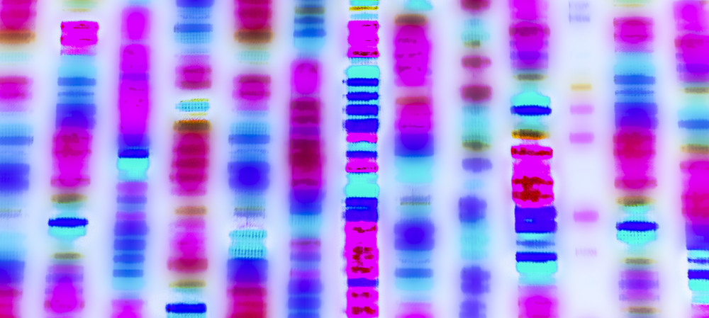 Reducing genomic testing time for critically ill babies