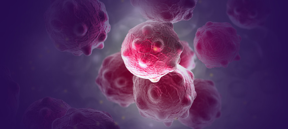 Reengineering the immune system to kill cancer
