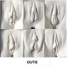 What is an outie vagina