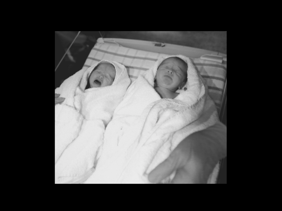Sophie Guidolin's newborn identical twin girls right after being born in black and white