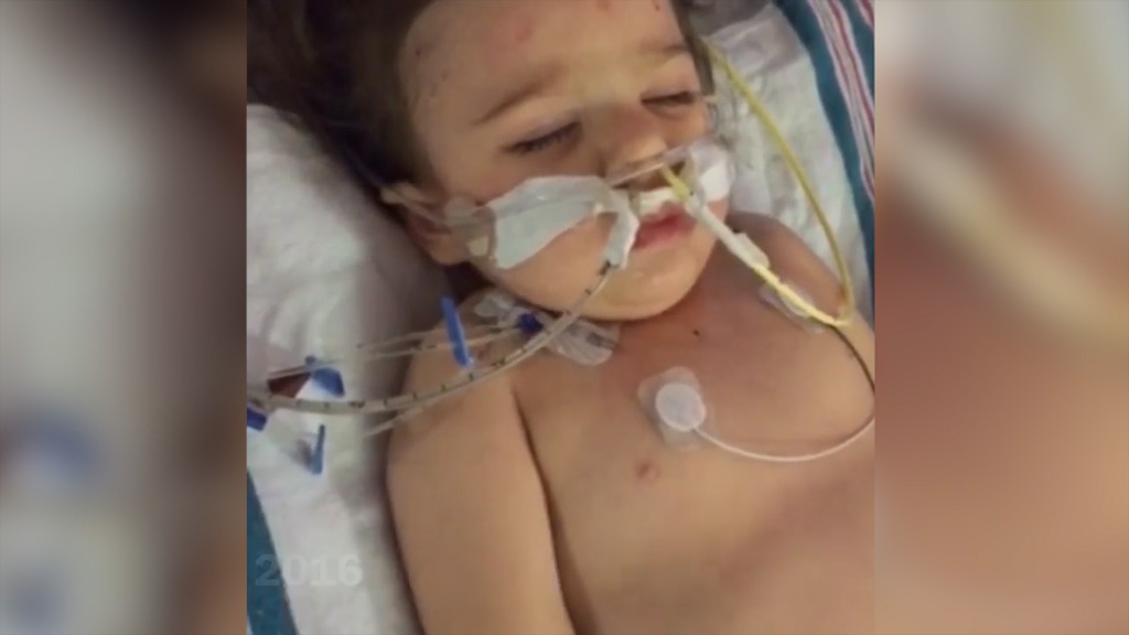 Toddler makes amazing recovery after drowning