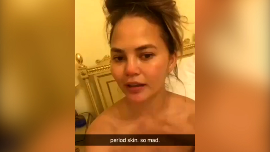 "Chrissy Teigen shares ""period skin"" video"