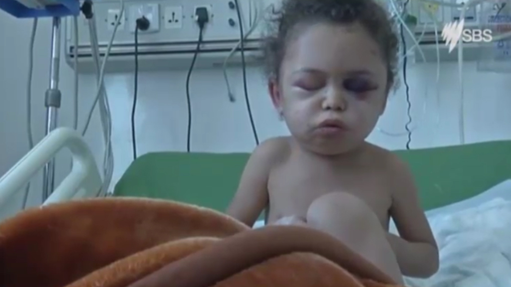 Six-year-old girl loses entire family in Saudi Arabia airstrike