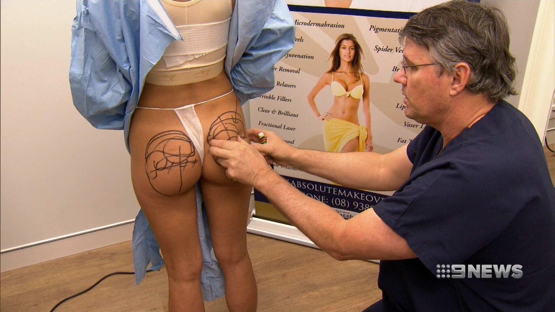 Requests for butt lifts skyrocketing in WA
