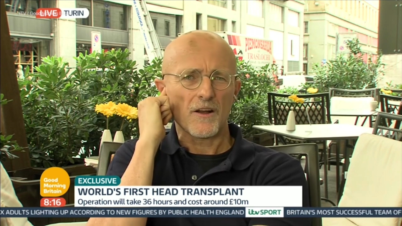 Professor reveals plans to conduct head transplant