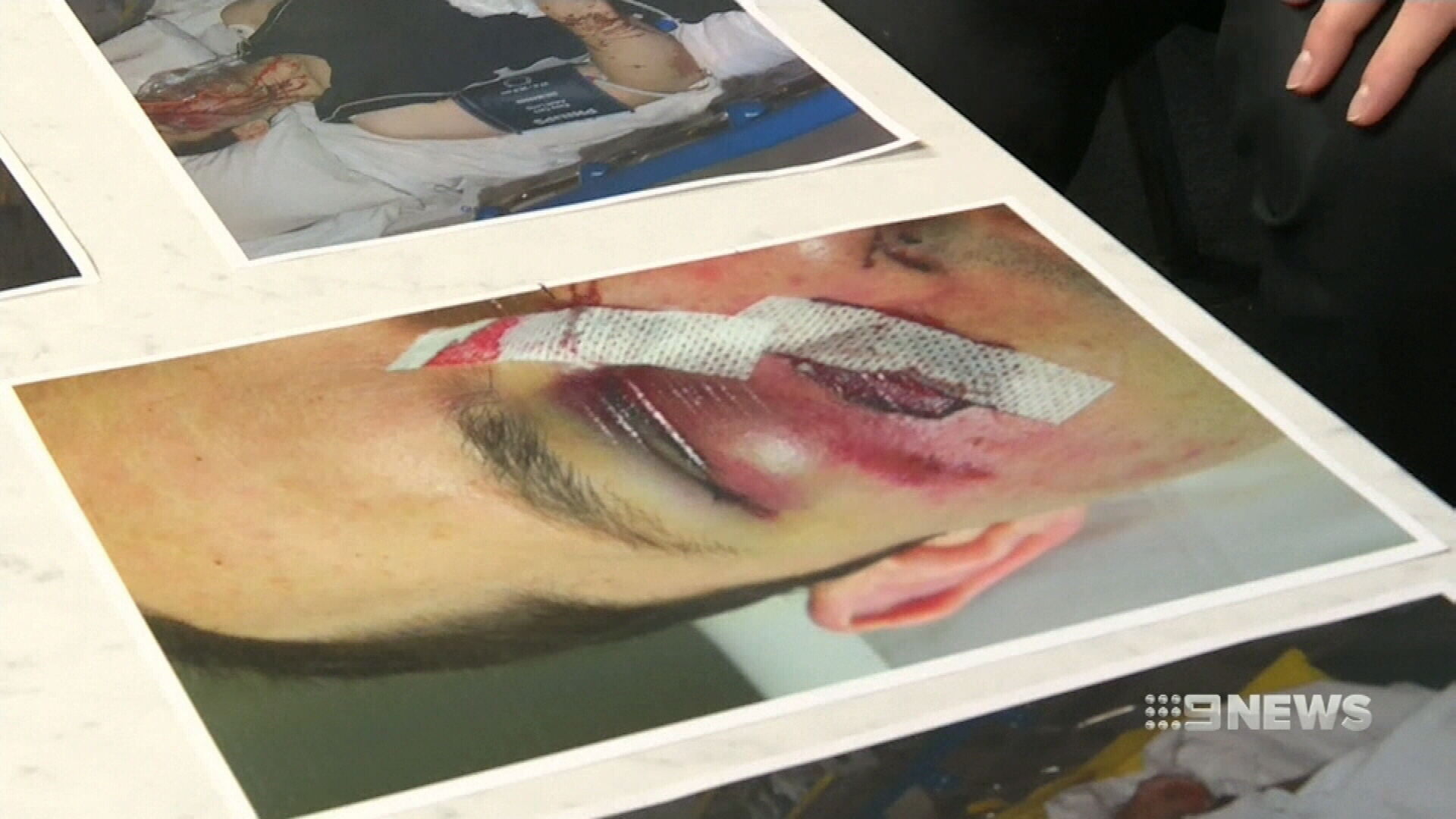 Canberra couple brutally beaten in case of 'mistaken identity'
