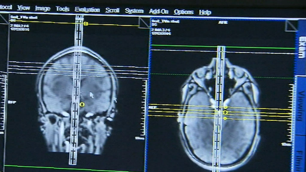 Parties compete to offer free MRI scans