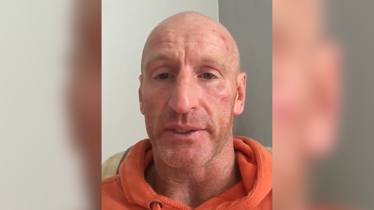 Former Welsh rugby star speaks out about 'hate crime' attack