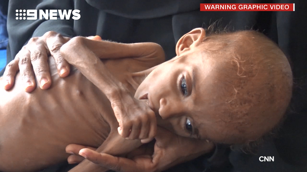 Yemen war: At least 85,000 children 'dead from hunger'