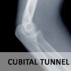 Cubital Tunnel
