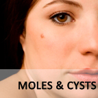 Moles and Cysts