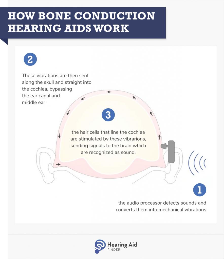 Bone Conduction Hearing Aids