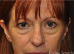 Facial plastic surgeon sydney