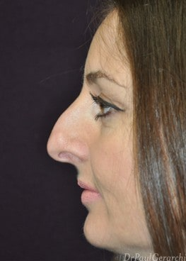 before rhinoplasty surgery