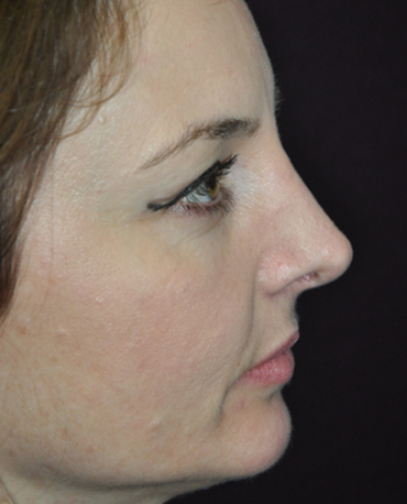 Nose Reconstruction