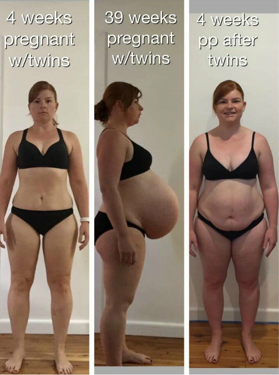 Stacey-Webb-twin-pregnancy-progress