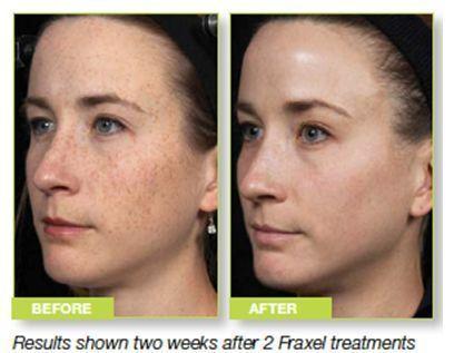 Heber Davis Skin Clinic Turns 25 Professional Beauty