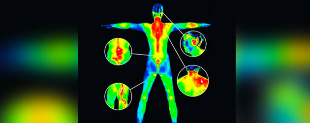 Digital Infrared Thermal Imaging at The House of Healing