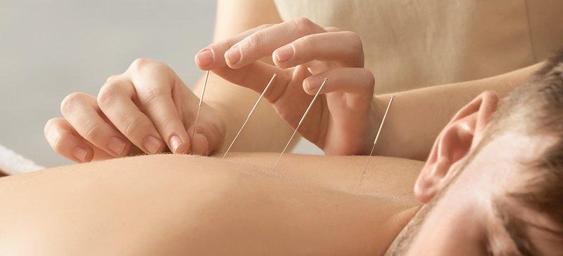 Best Acupuncture Service in Kingsland - Thrive Physiotherapy