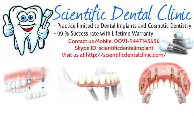 Dental implant cost in India