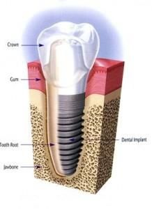 Get Root Canal Treatment from our MDental Dentists at